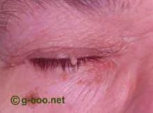 papiloma escamoso palpebra simptomele viermilor helmintici